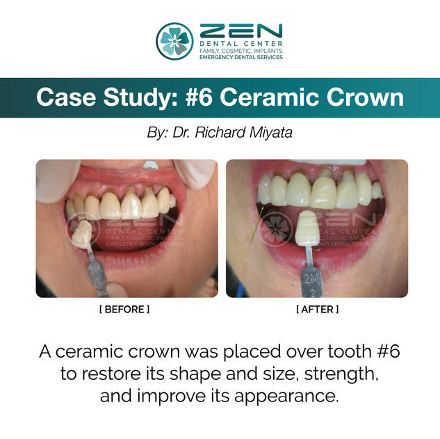 Ceramic Crown (#6)