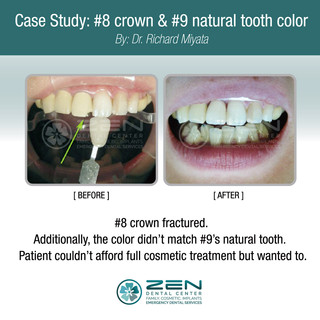Crown (#8 #9) natural tooth color