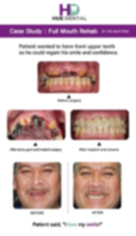 Hue dental_Full mouth rehab_Case Study-0