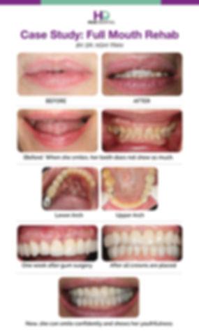 Hue Dental_Full Mouth Rehab.jpg
