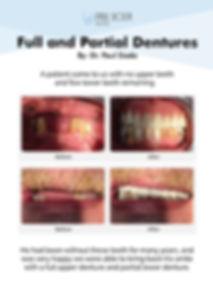 PaulSioda_Full and Partial Dentures.jpg