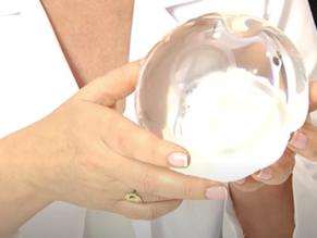 La revolución para bajar de peso de manera poco invasiva : el balón gástrico en píldora.