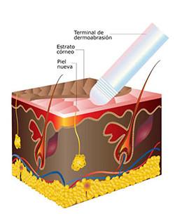 Año nuevo, cara nueva! Con el tratamiento de Micro abrasión Dérmica de Estética&Salud Natividad