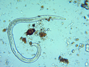 This nematode is awesome to look at. Even though it's really not so awesome.