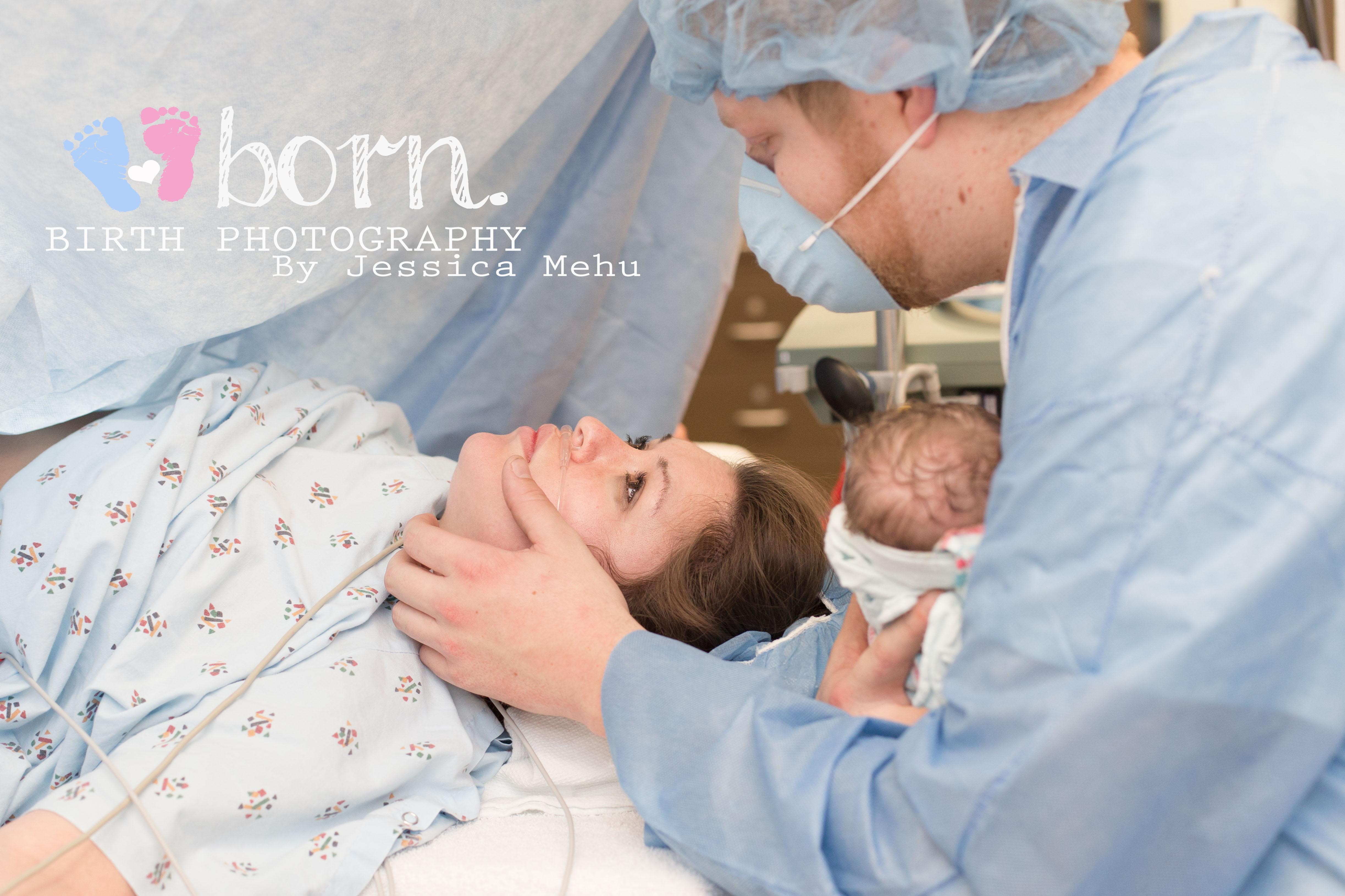 cesarean birth