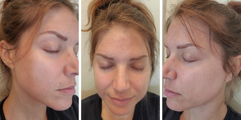Day 4 Post Microneedling with PRP treatment