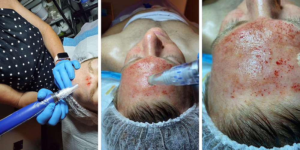 male microneedling with prp