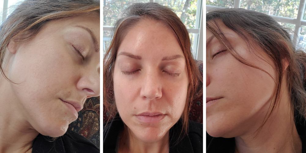 Day 6 Post Microneedling with PRP treatment