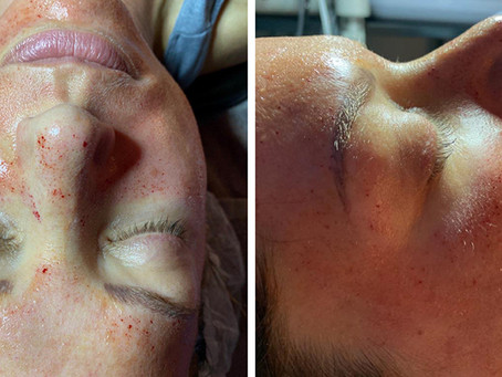 Client Journey Part 2: Real Skin Transformation using Mirconeedling and PRP