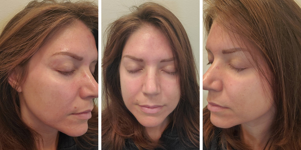 Day 2 Post Microneedling with PRP treatment