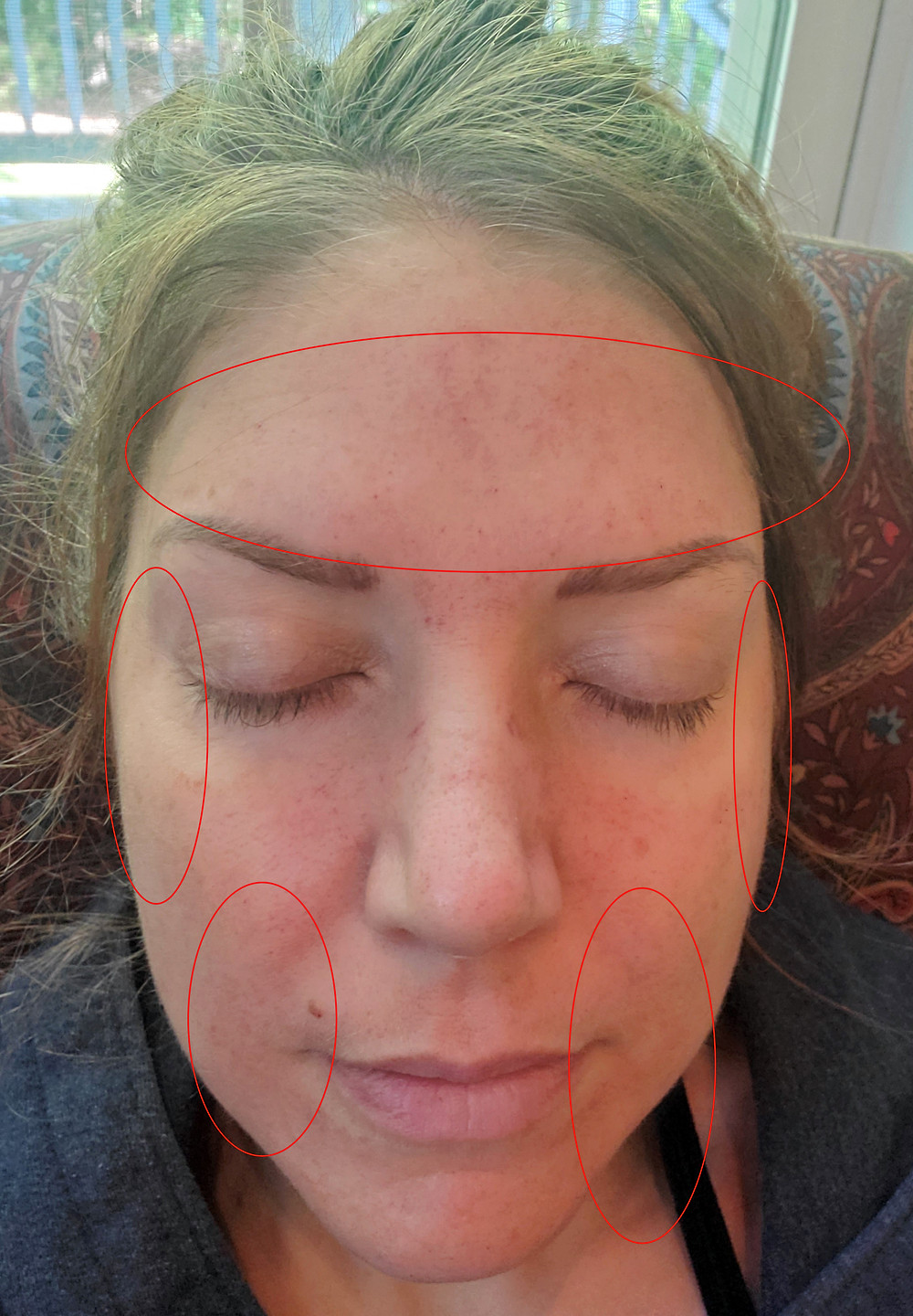 Botox areas of injection