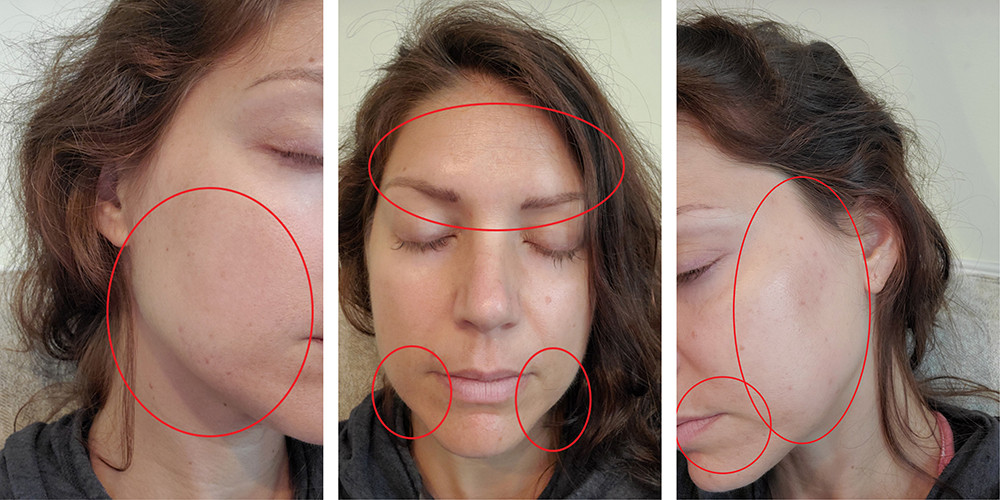 Before pictures PRP + Microneedling Treatment with The Skin Strategists