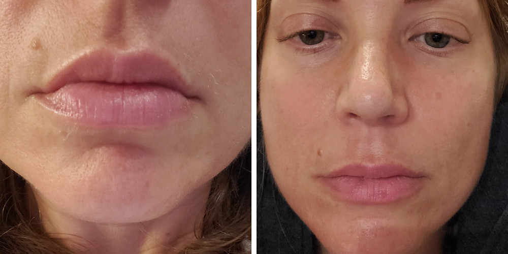 Lip Filler by the Skin Strategists