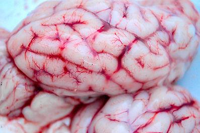 brain-2749313_1920.jpg