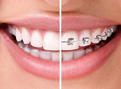 Ortodonzia-3764fu56ppdkaw3hrmcw7e.jpg