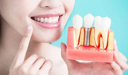 Implantologia-6-768x512-680x400.jpg