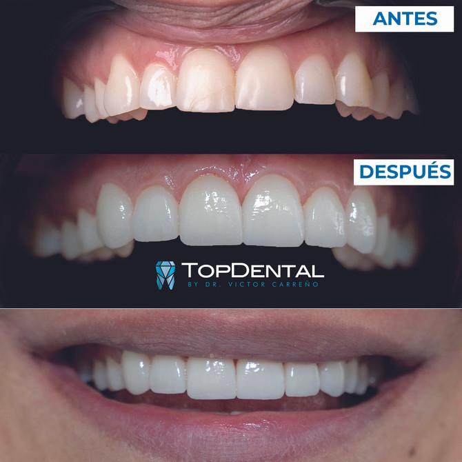 What to know before choosing Dental Veneers!