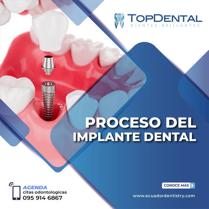 3 cosas que debes saber sobre los implantes dentales