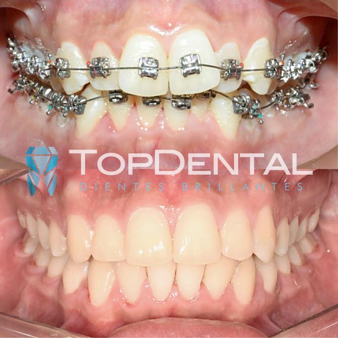 Ortodoncia especializada en TopDental - Manta, Ecuador