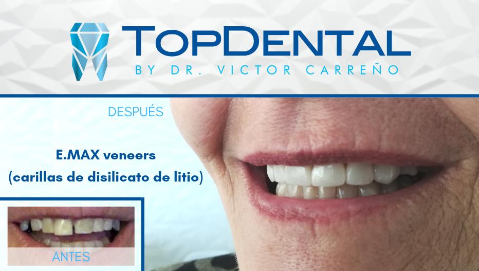 dental veneers TopDental Victor Carreno Manta Ecuador