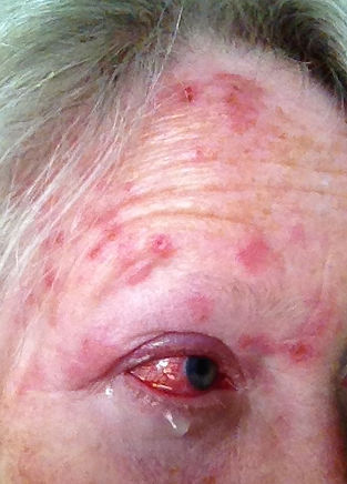 Day07_shingles_or_Herpes_Zoster_Virus_at