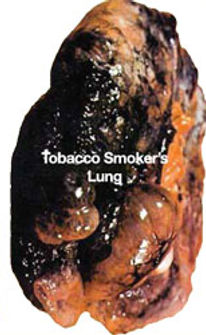 Healthy_lung-smokers_lung.jpg
