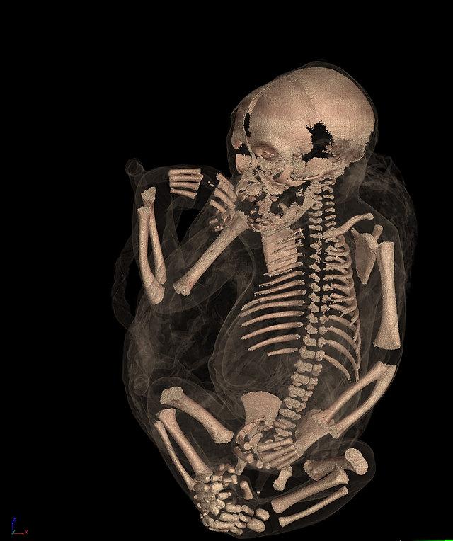 P_troglodytes_Full Body CT scan image.jp