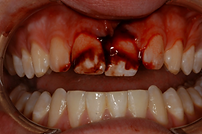 Dental Trauma