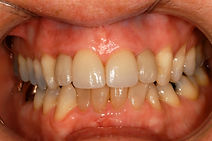 Zirconia Implants