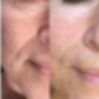før og etter.jpeg