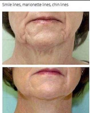 Lower Face Lift_Fibroblast Plasma-Skin T