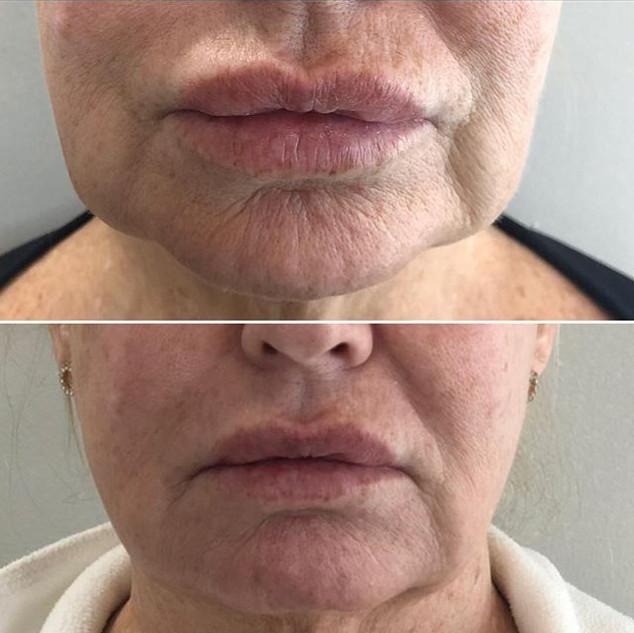 Jawline lift with Fibroblast Plasma-Skin