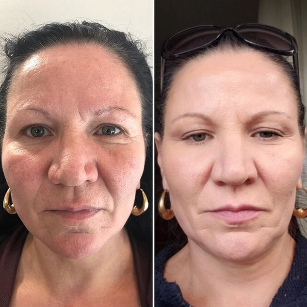 Whole face lift with Fibroblast Plasma-S