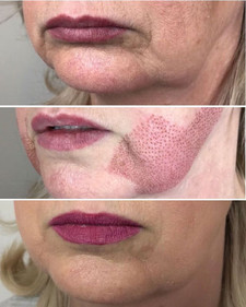 Jaw Lift _Fibroblast Plasma-Skin Tighten