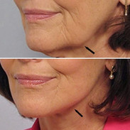 Jawline Lift with Fibroblast Plasma-Skin