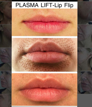 Fibroblast Plasma-Lip Flip_A highly effe