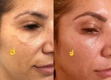 Fibroblast Plasma- Sun spots removal_A h