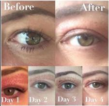 Eyelids Lift _Fibroblast Plasma-Skin Tig