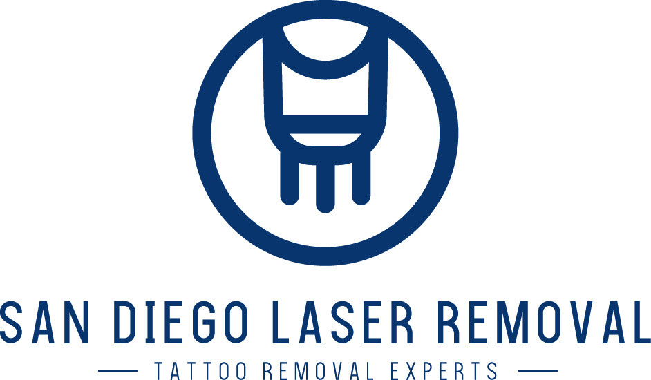 San Diego Laser Tattoo Removal - PRICING