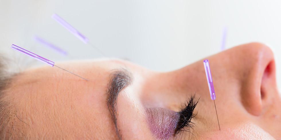 Ausbildung in Augenakupunktur an 2 Wochenenden