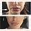 Thumbnail: Mouth & Lip Wrinkle Smoothing Kit