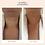 Thumbnail: Neck Lift & Wrinkle Smoothing Kit