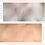 Thumbnail: Chest & Décolletage Wrinkle Smoothing Kit