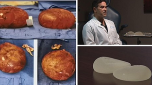 Dr. Berardi: Recall on Textured Breast Implants