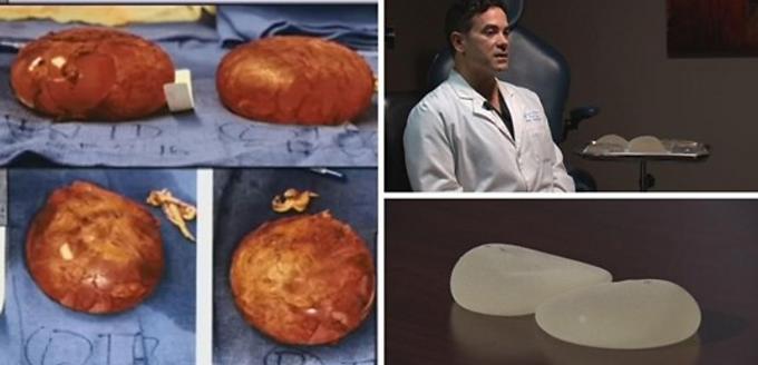 Dr. Berardi: Recall on Textured Breast Implants