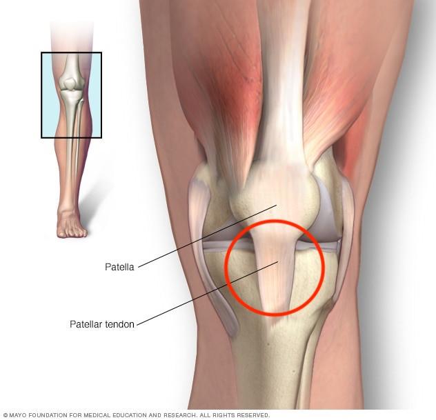anatomical illustration of a knee displaying the patella and patellar tendon