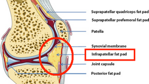 Fat pad impingement