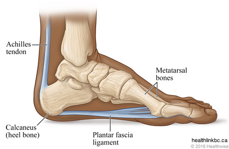 anatomical drawing of a feet displaying the achille tendon, metatarsal bones, the heel bone and the plantar fascia ligament