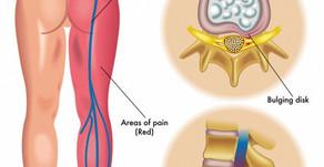 Sciatica (Lower Back Pain)