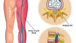 Sciatica (Lower Back Pain)